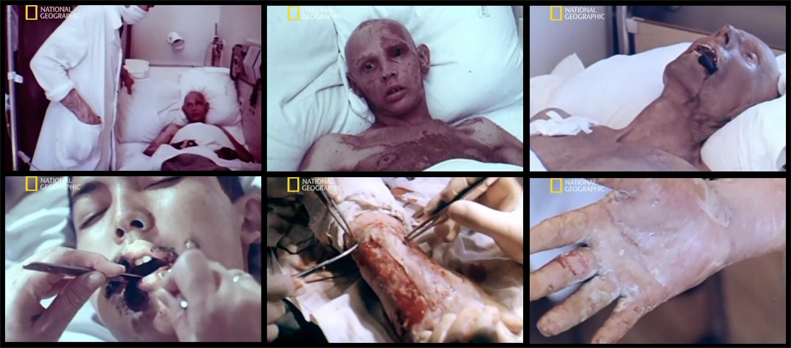 Oběti z Černobylu